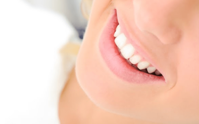 Teeth Whitening (1)